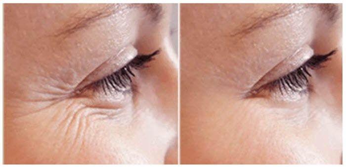 before-and-after-plasma-eye-tightening-700