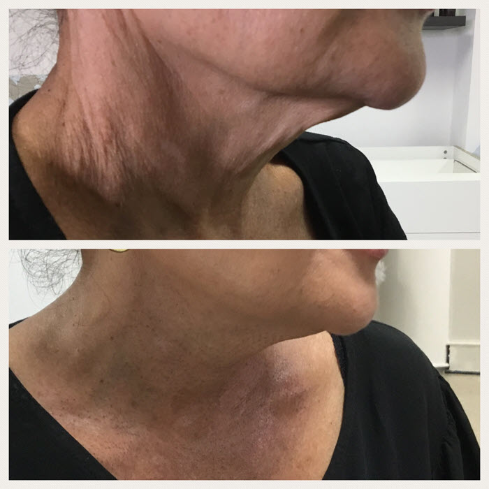 plasma-pen-before-and-after-neck-treatment